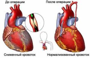 coronary-artery-bypass-surgery